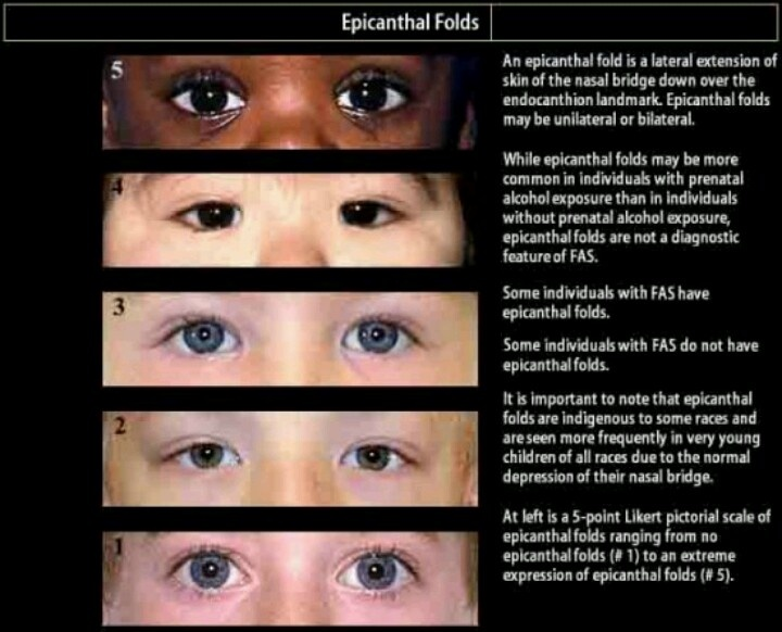 Fetal alcohol spectrum disorder facial features