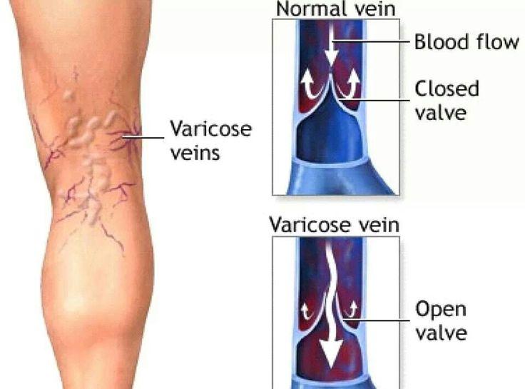 behandlung von venen der untere extremität anatomie chemnitz.jpg