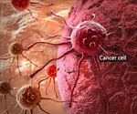 Cancer Drugs' High Prices Not Justified by Cost of Development Study Contends