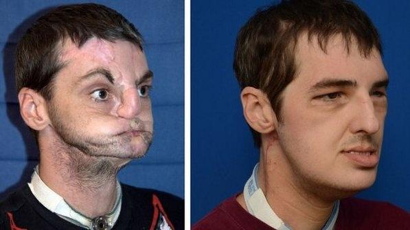 Homem recupera o rosto depois de ser submetido a um transplante facial. O resultado da cirurgia foi divulgado pela Universidade de Maryland, nos Estados Unidos. O transplante realizado em Richard Lee Norris, é considerado o transplante facial mais completo e extenso realizado até hoje. Clique na imagem para ler a matéria completa.