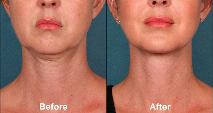Kybella Double Chin Reduction | Portland, OR | Key Laser Center