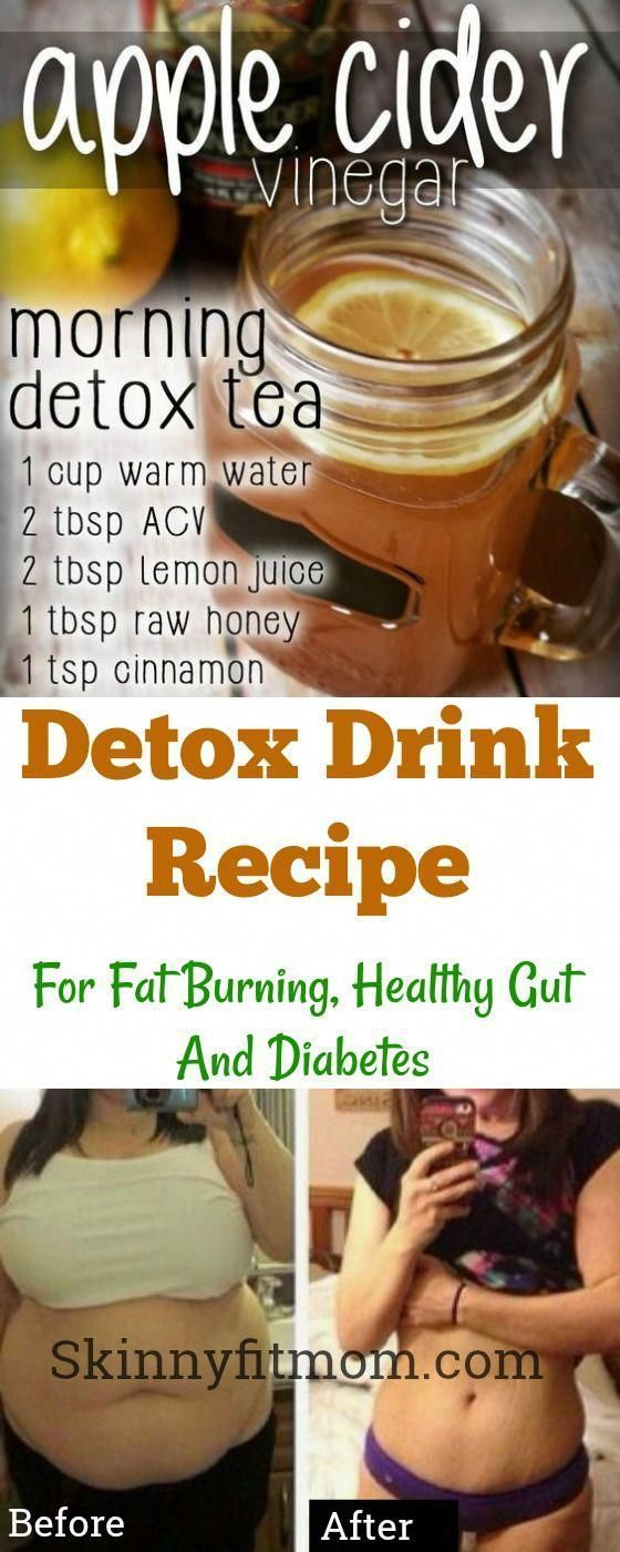 Apple Cider Vinegar Detox Drink Recipe for Fat Burning, Diabetes, Healthy Gut