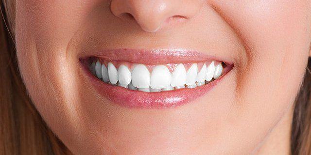 FAQ about Dental Implants (via webmd.com) - http://www.webmd.com/oral-health/guide/dental-implants