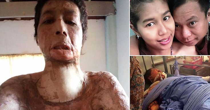 A woman was doused in gasoline and set on fire by her husband because she posted selfies to social media.