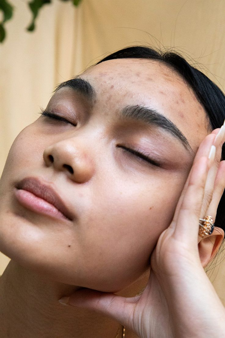 Skin Neutrality Is The New Skin Positivity — But I'm Not Buying It - Health and wellness: What comes naturally Girl With Acne, New Skin, You Are Beautiful, Feeling Beautiful, Hormonal Acne, No Photoshop, Real Beauty, Skin Problems, Clear Skin