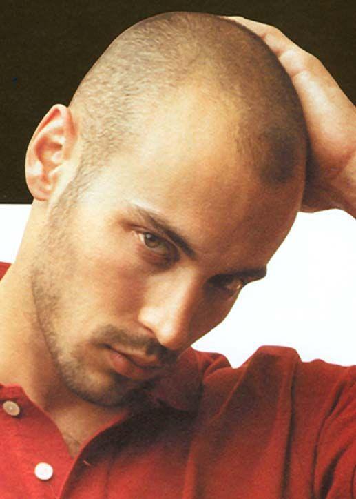 Burr Haircut for Balding Man