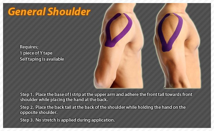 Kt Tape Elbow Strain Related Keywords & Suggestions - Kt ...