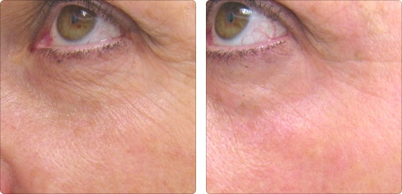 The Laser360™ protocol helps rejuvenate the skin and soften fine lines and wrinkles.