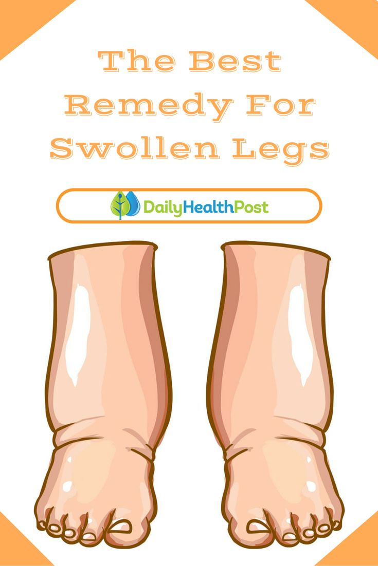 If you have ever experienced swelling in your legs (or your hands or feet for that matter) you know how painful it can become.This Powerful Tea Is The Best Remedy For Swollen Legs. #homeremedy