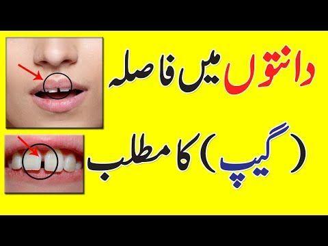 Meaning Of Gap Between Teeth In Urdu || | Genreal