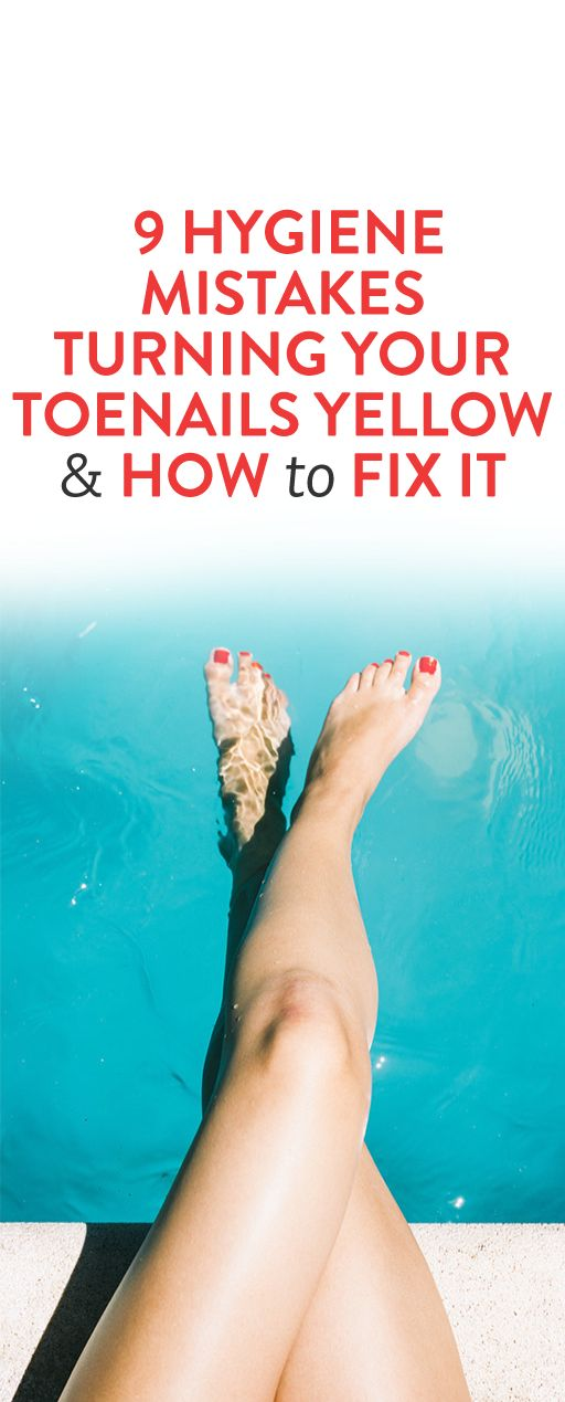 9 Hygiene Mistakes Turning Your Toenails Yellow and How to Fix It