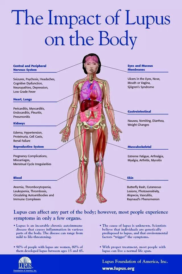 Lupus Impact on the body