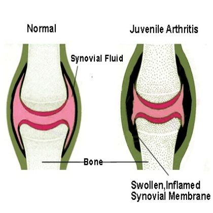 Juvenile Arthritis Treatments #juvenilearthritis #whatisjuvenilearthritis