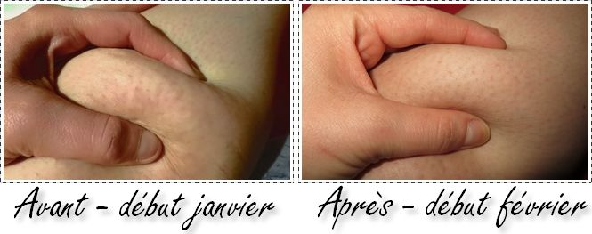 a Matter of Everything: Aroma-Zone, Cellu-Cup & moi - tous ensemble contre ma cellulite !