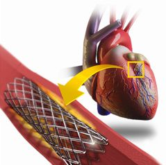 Global Coronary Stent Market competitive landscape and Trends to 2023 Projects the Market to Reach USD 7.8 Billion By 2023 Global coronary stent market is expected to flourish at a significant CAGR during the forecast period. Moreover, the global coronary stent market was estimated at USD 8.6 Billion in 2015. Rapid growth of aging population and increasing cardiovascular diseases across the globe are fostering the growth of the global coronary stent market.