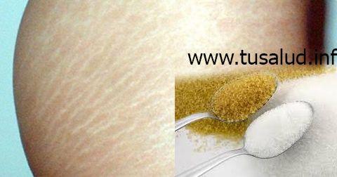 Ingredientes: 2 cucharadas de azúcar blancoUn limón. Una cucharada de aceite de almendras dulcesUnas gotas de aceite de coco