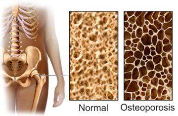Per rimanere forti, le ossa hanno bisogno di altri minerali, vitamine e proteine che la giusta dieta può fornire in grandi quantità.