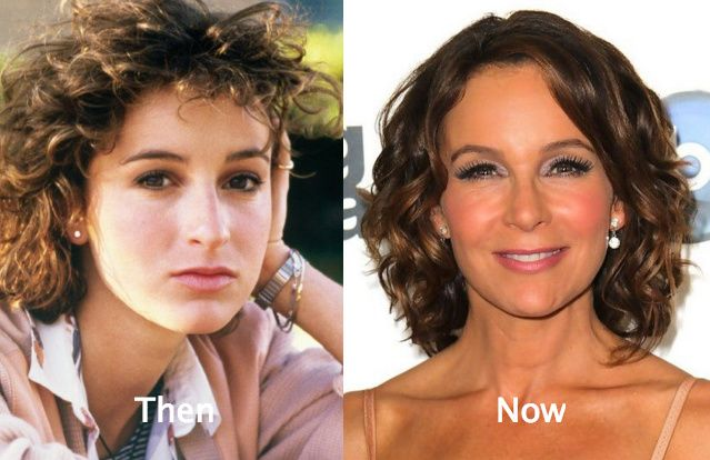 Jennifer-Grey-Plastic-Surgery-Before-and-After.jpg (639×414)
