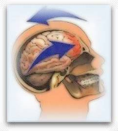 Hersenletsel uitleg
