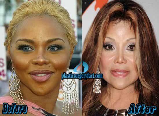 lil kim plastic surgery before and after pictures http