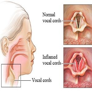 Effective Natural Remedies For Laryngitis