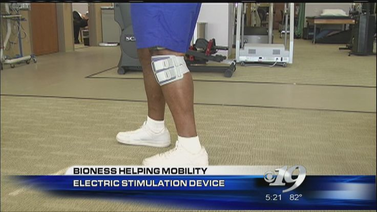 Watch the Bioness device in action back in 2013 during this news coverage.   If you or someone you know has recently had a stroke, there are some new treatment options when it comes to physical therapy.