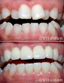 """ORTODONCIA INSTANTÁNEA"""", crea artísticamente la ilusión de dientes derechos sin necesidad de usar brackets, alineando y cerrando espacios antiestéticos utilizando cosmética dental"""