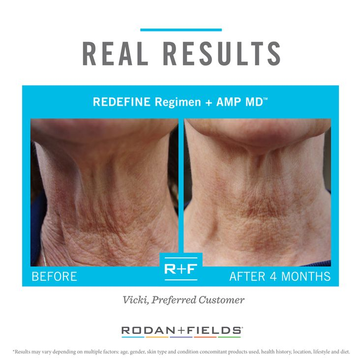 how to use amp md roller with redefine