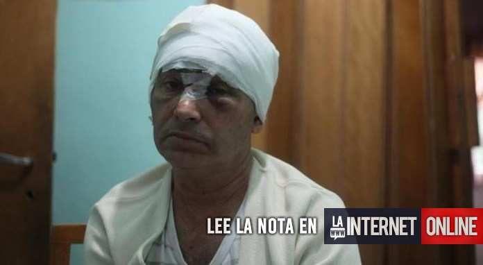Un peluquero fue asaltado por dos ladrones que lo desfiguraron a golpes porque sólo tenía 200 pesos, en la ciudad de La Plata, se informó hoy.  El hecho se registró el miércoles, pasadas las 19, en la calle 22 entre 80 y 81, del barrio Altos de San Lorenzo.   #policiales #ultimo momento