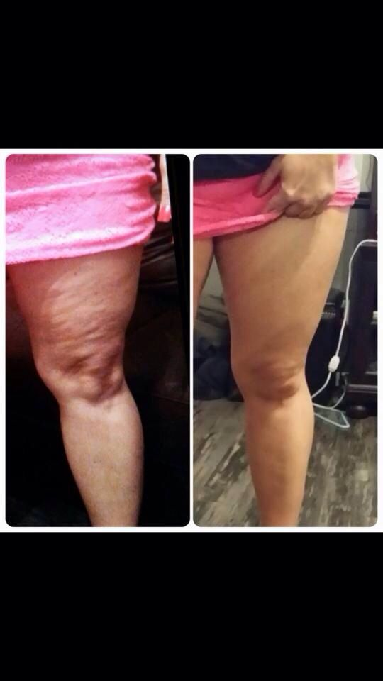 After using Nerium Firm Body Contouring Cream!