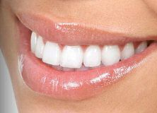 Teeth Bonding - A Cosmetic Dental Bonding Guide