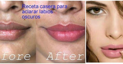 Cómo aclarar los labios oscuros- Remedios caseros
