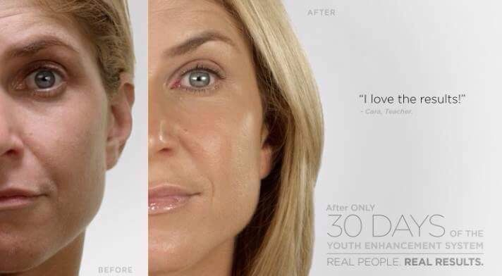 Testimonials before and after Luminesce