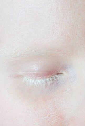 : Albino Beautiful, Color, Beautiful Moon, Eye Lashes, Black People, White Lashes, White Eyelashes, Children, Book Series