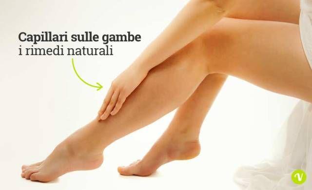 Rimedi naturali per i capillari delle gambe: rusco, centella, ippocastano, vite rossa, amamelide.