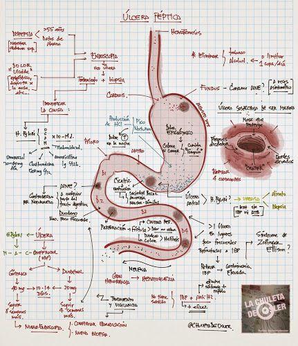 La Chuleta de Osler: Gastroenterología: Enfermedad por úlcera péptica, gástrica y duodenal.
