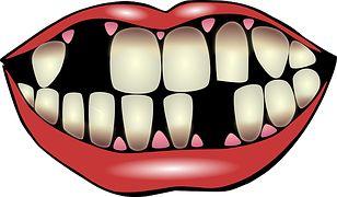Гигиена Зубов, Стоматологическая Помощь