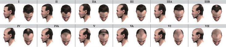 Male Hair Loss Causes #hairlossolotion
