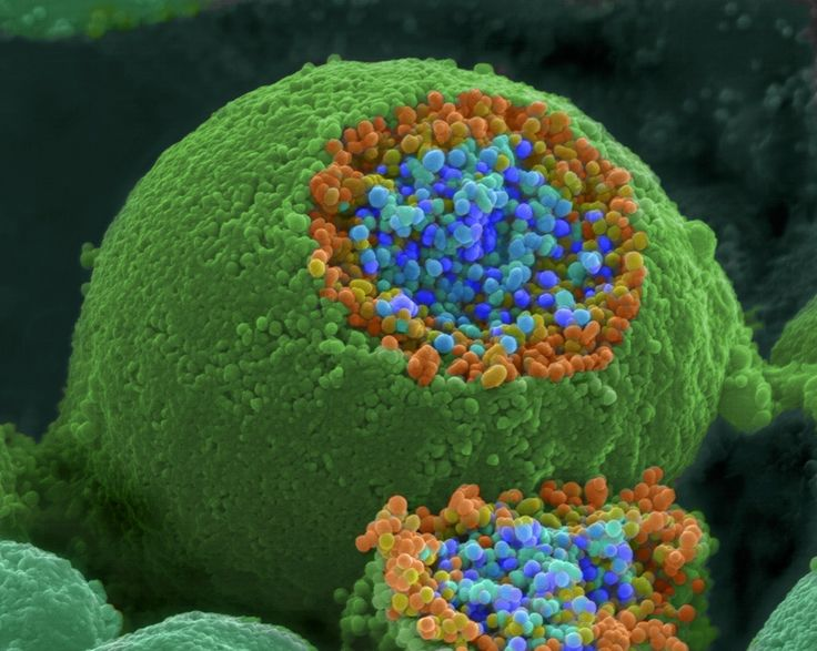 A scanning electron microscope picture of a nerve ending. It has been broken open to reveal vesicles (orange and blue) containing chemicals used to pass messages in the nervous system.