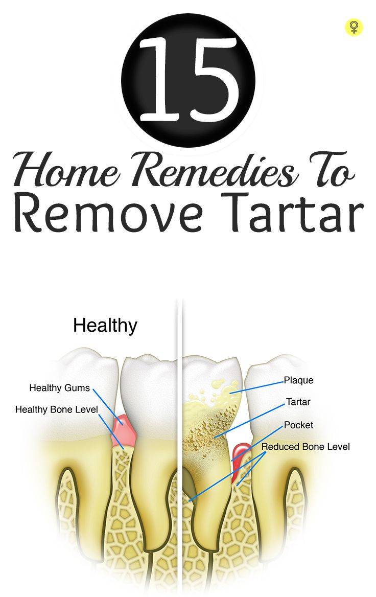 Tartar is a yellowish brown calcified material formed on the surface of teeth. Check out these effective home remedies for removing tartar and preventing it from growing further
