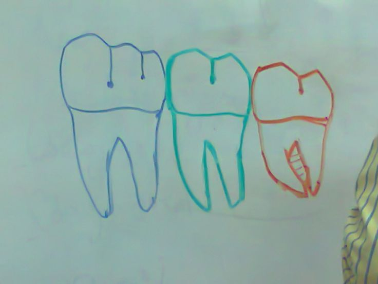 molares mandibulares