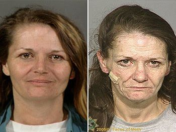 15 best images about Faces of meth on Pinterest ...
