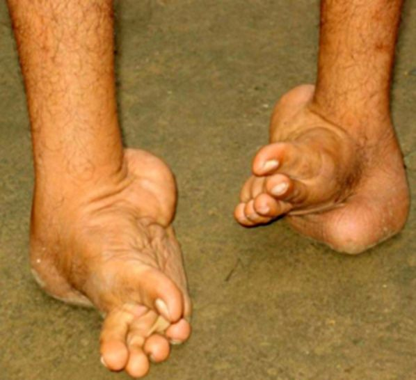 Best Shoes For Clubbed Feet