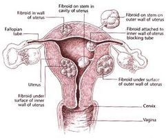 Recovering From Uterine Fibroids Surgery thumbnail