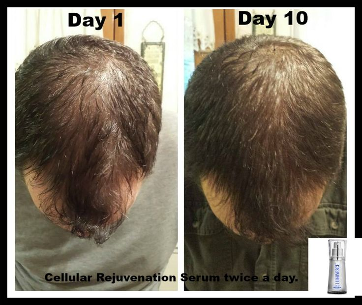 OMG!! Look at my Hubbies before and after!!! It has only been 10 DAYS!! We haven't even made it to Day 30 of using the Cellular Rejuvenation Serum twice daily. I cannot even believe how much fuller his hair is! David is in shock! Ask me how you can get this product! if this works for men, it will work for women as well! www.fitfabulousandfierce.ca