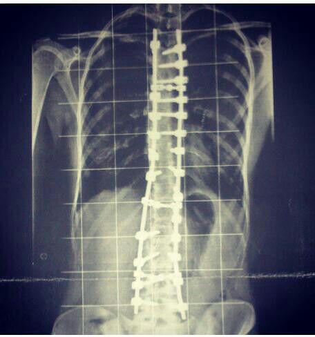 My scoliosis surgery :c