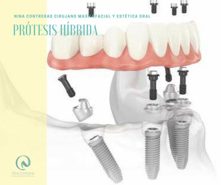 Especialistas en #prótesishíbrida #fijasobreimplante #implantesdentales ✅ En este Mes Invierte en Ti  ✅ Sonríe de Forma Natural Agenda tu #cita ya: ☎️ 6571629 📲 300 8934528 #cirugía #ortognática #maxilofacial #ortodoncia #diseñodesonrisa #dentalimplants #orthognathicsurgery #surgery #maxillofacialsurgery #orthodontics #smiledesign #smile #teethwhitening #teeth #oralrehabilitation #oral #ninacontreras http://ninacontrerascmf.com/