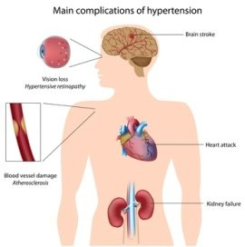 Stroke, heart attack, heart failure, kidney failure, atherosclerosis are some of the common effects of high blood pressure