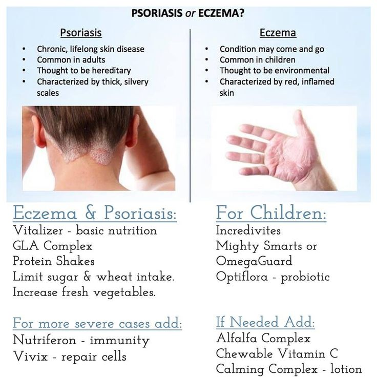 A Good Solution For Psoriasis And Eczema 2