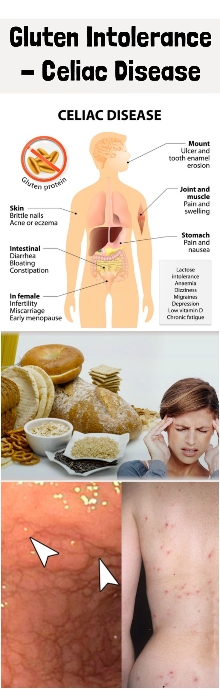 Gluten intolerance belongs to autoimmune disease and is called celiac disease. Gluten is a type of protein that is found in some cereals (wheat, grazing, and rice). As with all other autoimmune diseases, and in this case, in those who have expressed intolerance to gluten, there is a fault in the immune system reaction. #gluten #intolerance #celiac #disease #treatment #symptoms